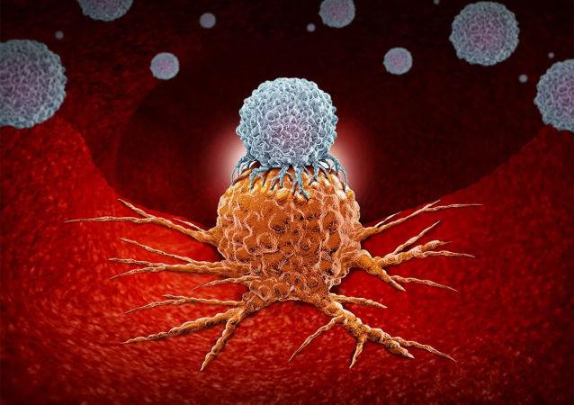 俄羅斯研發最新型抗癌激光系統