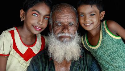 """孟加拉国摄影师Muhammad Amdad Hossain拍摄作品《美丽的眼睛》入选安德烈·斯捷宁摄影大赛""""肖像,当代英雄,单张作品""""评选名单。"""