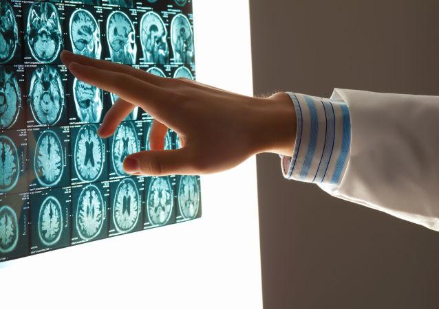 """克宫不掌握""""芯片植入大脑""""计划的相关信息"""